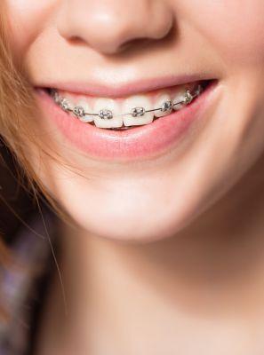Dor de dente após a manutenção do aparelho ortodôntico é normal?