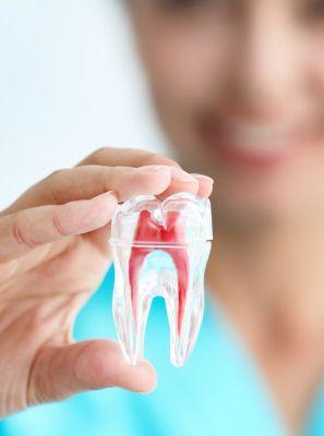 3 coisas que você precisa saber sobre a extração do dente siso
