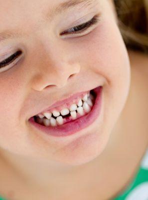 O dente de leite caiu e o permanente não nasce. O que fazer?