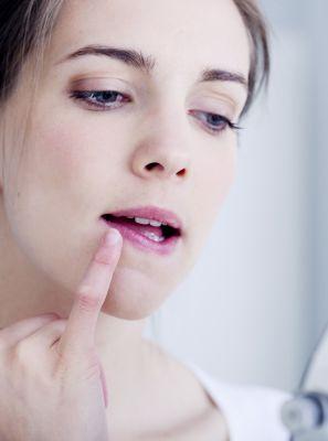 Herpes labial: Conheça as causas e os fatores de risco