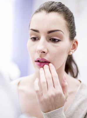 Afta nos lábios ou herpes labial: saiba como diferenciar essas duas lesões na boca