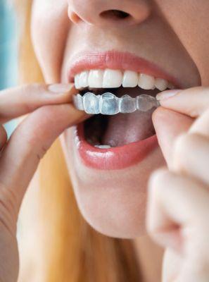 Aparelho transparente pode causar dor de dente? Ortodontista revela se esse incômodo é comum no início do tratamento ortodôntico