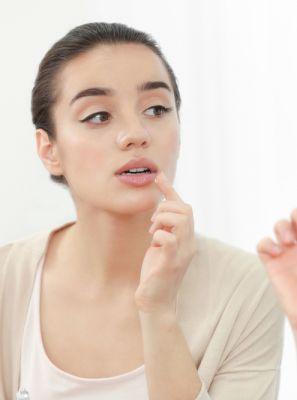 Herpes labial: 4 opções para lidar com o problema em casa