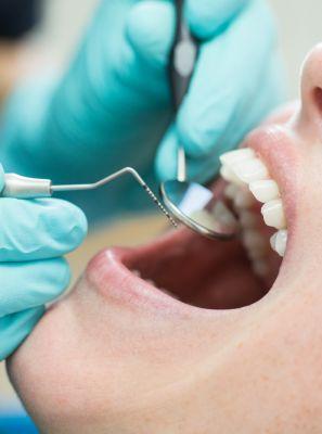 Nasceu um dente no céu da boca: o que fazer agora?