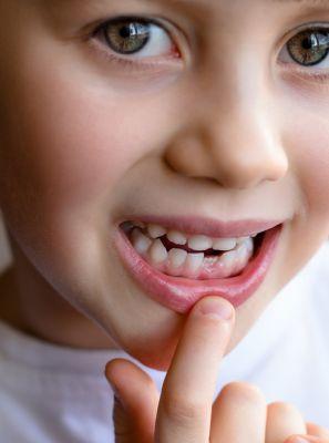 Dente de leite que não amolece: odontopediatra explica o que é e todos os cuidados com a saúde bucal da criança nessa época