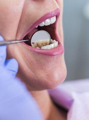 Quais problemas uma infiltração na restauração dentária pode trazer?