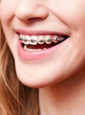 Sinais que indicam que seu filho precisa usar aparelho dentário