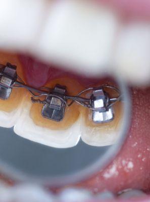 Ortodontia lingual: a especialidade que une saúde e estética por um sorriso mais harmonioso