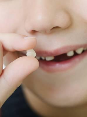 O mantenedor de espaço protege a arcada dentária em casos de perda precoce do dente de leite