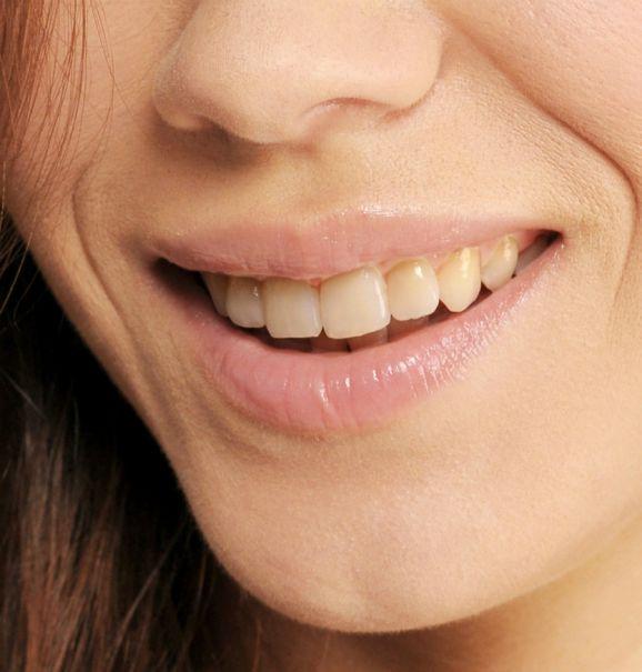O poder do clareamento dental: antes e depois de um tratamento