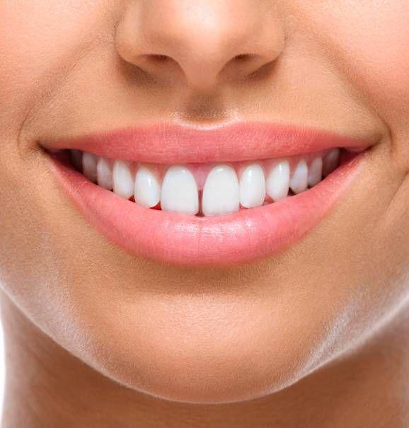 Diastemas: corrija esse problema e garanta um sorriso perfeito