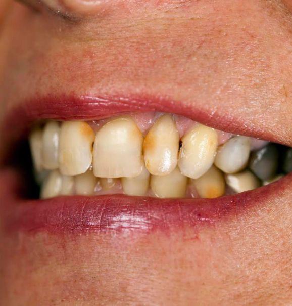 O tártaro prejudica dentes e gengiva e precisa ser tratado