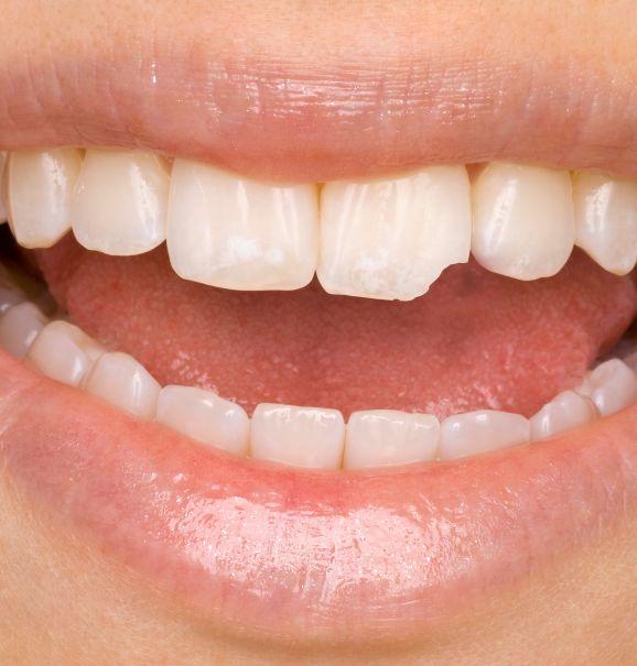 Antes e depois: como a restauração pode salvar um dente quebrado