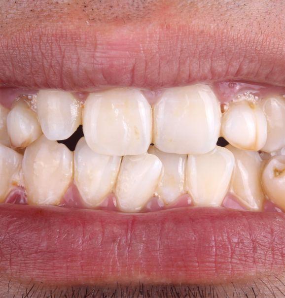 O poder da Ortodontia: confira a transformação que o aparelho ortodôntico faz pelos seus dentes