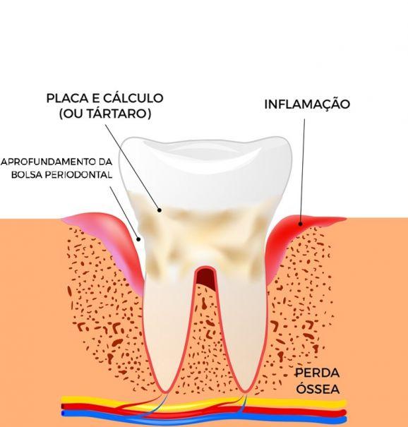 Quais são as consequências de uma periodontite? Dentista explica os riscos e sintomas