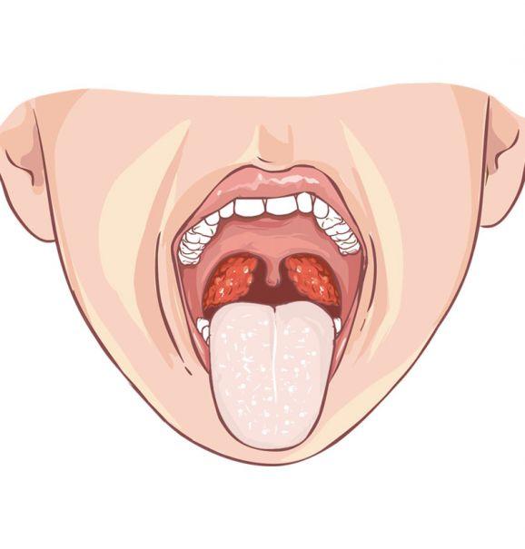 Os 5 benefícios de se escovar a língua. Você tem esse hábito?
