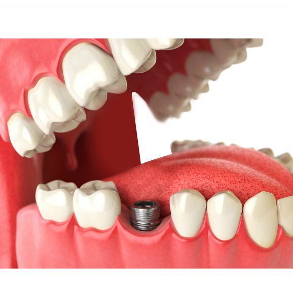 Implante dentário traz seu sorriso de volta. Saiba mais sobre o procedimento e compare o antes e depois