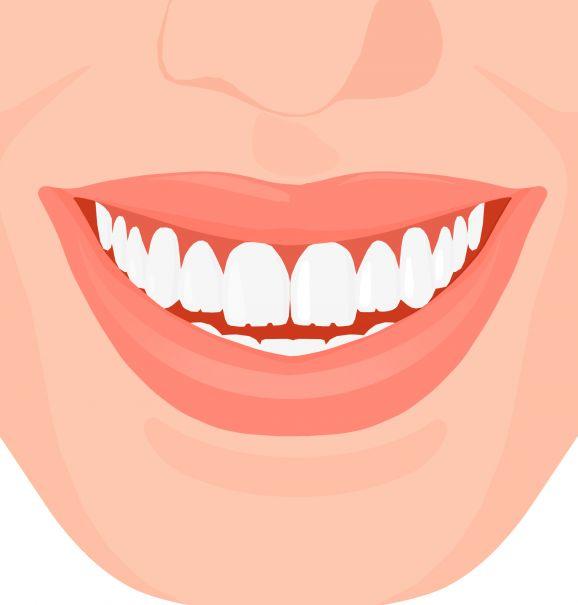 Dentes de serrinha: será que o problema é apenas estético?