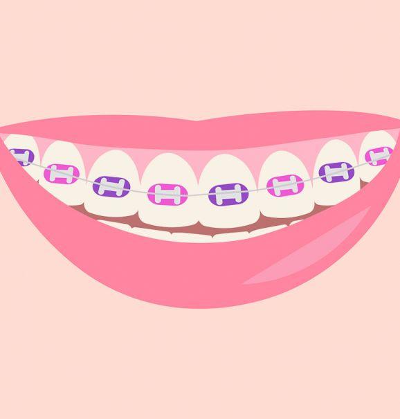 Fim do tratamento ortodôntico: limpeza dos dentes e clareamento dental são indicados nessa fase