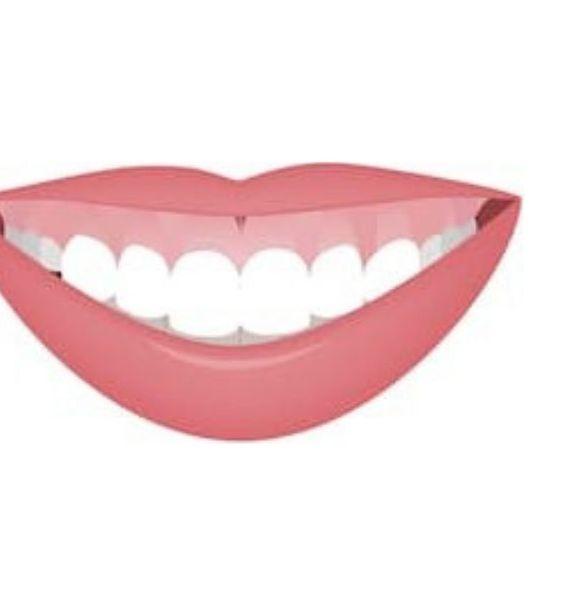 Tratamento para sorriso gengival com toxina botulínica: como fica o resultado