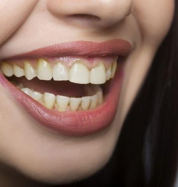 Facetas dentárias: uma alternativa para o seu sorriso! Confira o antes e depois do tratamento