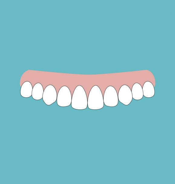 Aparelho invisível: confira o antes e depois desse tratamento para quem tem dentes levemente tortos