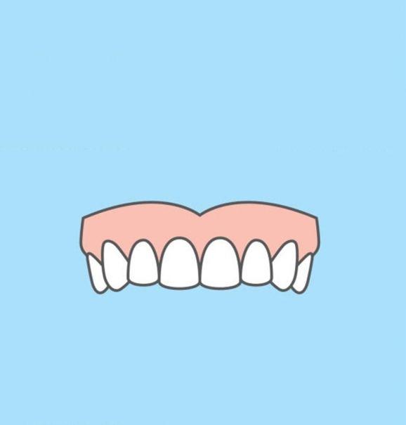 Antes e depois da fluorose dentária: conheça todas as opções de tratamento para remover as manchas brancas dos dentes