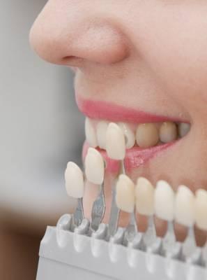 Cor, brilho e durabilidade: Conheça 7 vantagens das facetas de porcelana, uma técnica da Odontologia Estética