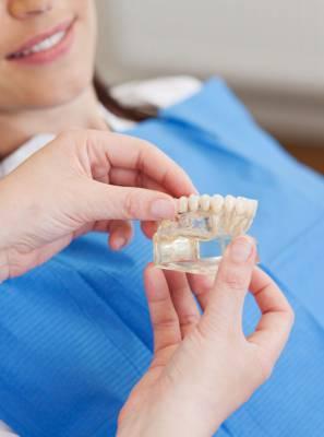 5 mitos e verdades que você precisa saber sobre implantes dentários