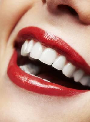 Lente de contato dental pode tornar os dentes perfeitos. Entenda como funciona