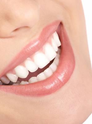 Lente de contato dental: quais são as principais vantagens desse procedimento para o seu sorriso?