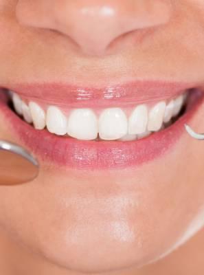 Lente de contato dental: Quanto tempo ela dura?