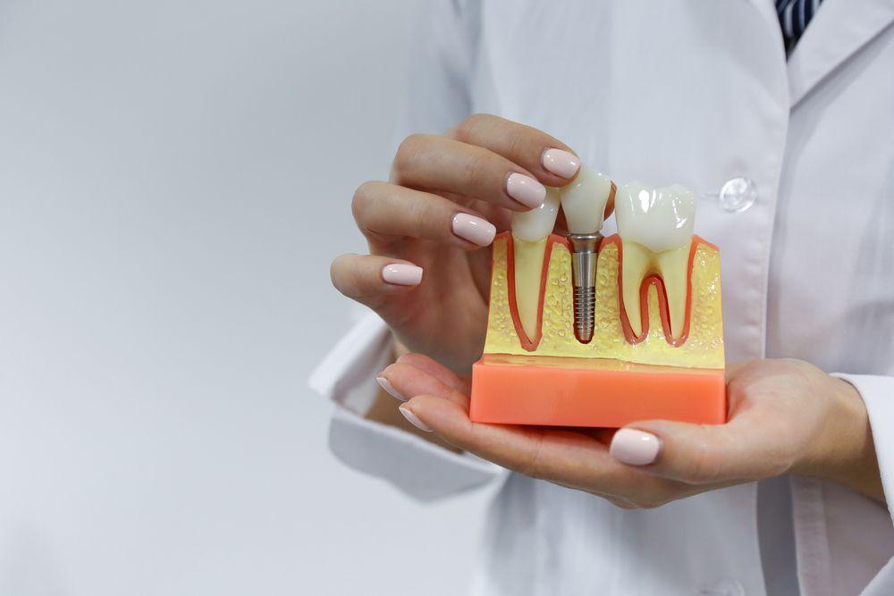 Você sabe tudo sobre implante dental e prótese? O 'Pergunte ao Dentista' tira suas dúvidas