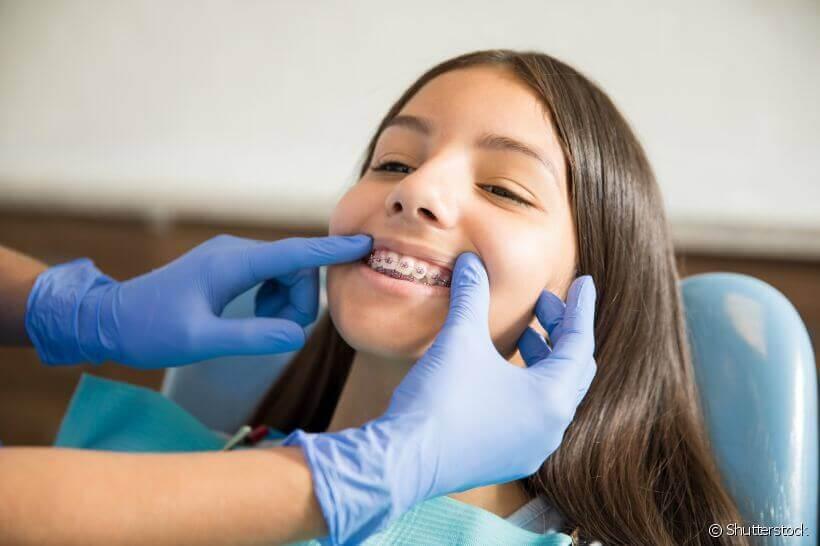 Para que servem os parafusos de ancoragem na ortodontia?