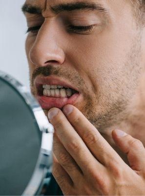 Dente escuro: as principais causas do problema