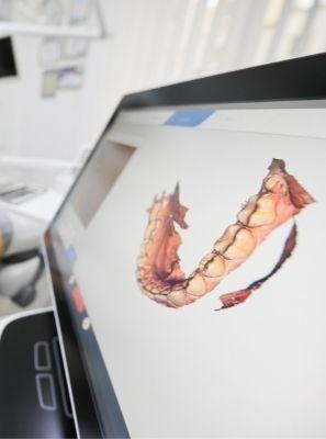Como o scanner intraoral pode melhorar a sua saúde bucal?