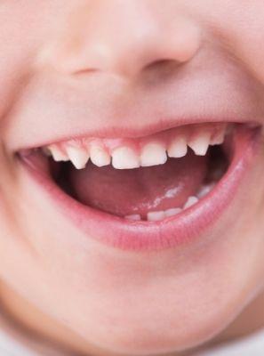 Cárie no dente de leite: o que pode causar?