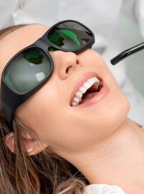 Lente de contato dental: tecnologia evita desgaste dentário?
