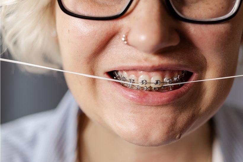 Como escolher fio dental para aparelho?
