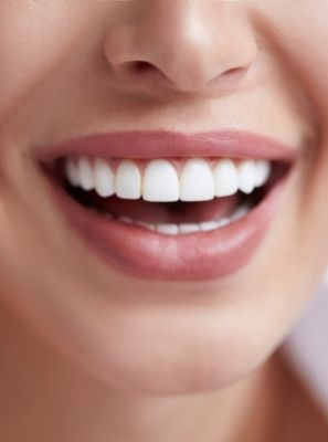Fita para clareamento dental funciona? Dentista esclarece!