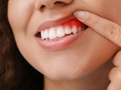Gengiva alterada em volta do dente: o que pode ser?