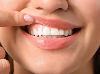 Prótese dentária pode deixar gengiva escura?