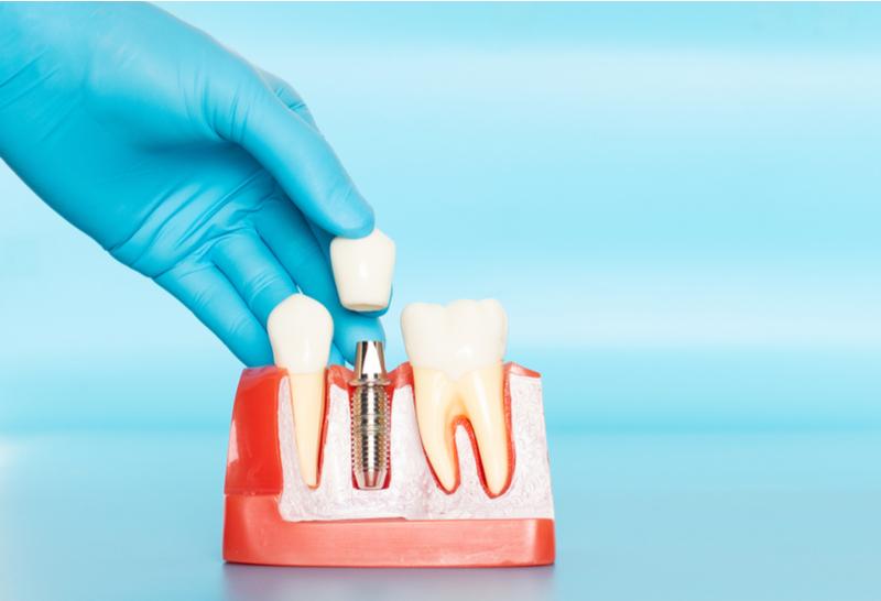 Por que preciso do implante dental?